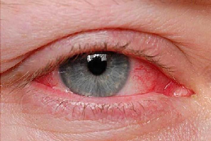 عفونت های ویروسی، شایع ترین بیماری چشم در فصل گرما
