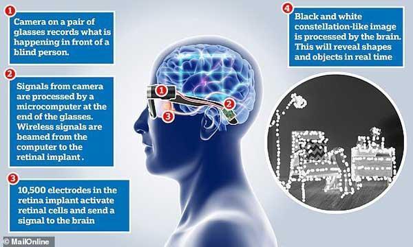 شبکیه مصنوعی به نابینایان نوعی دید مجازی می دهد