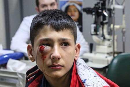 آسیب های چشمی چهارشنبه سوری غیر قابل بازگشت هستند