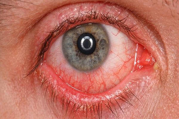 مشاهده شواهدی مبنی بر ابتلای سلول های چشم به کووید-19